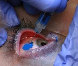 Keratopigmentation (KTP)