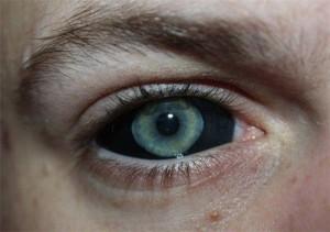 tattoo corneal